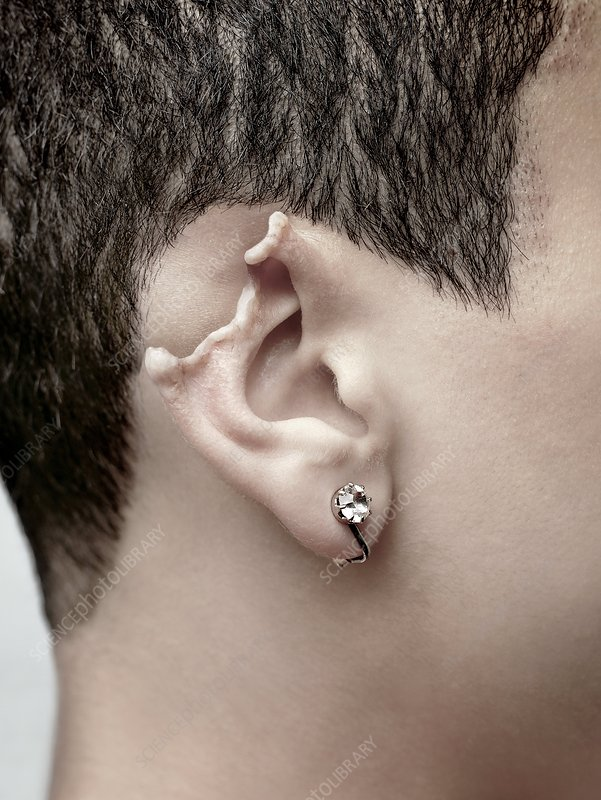 Damaged ear - Stock Image C002/5549 - Science Photo Library