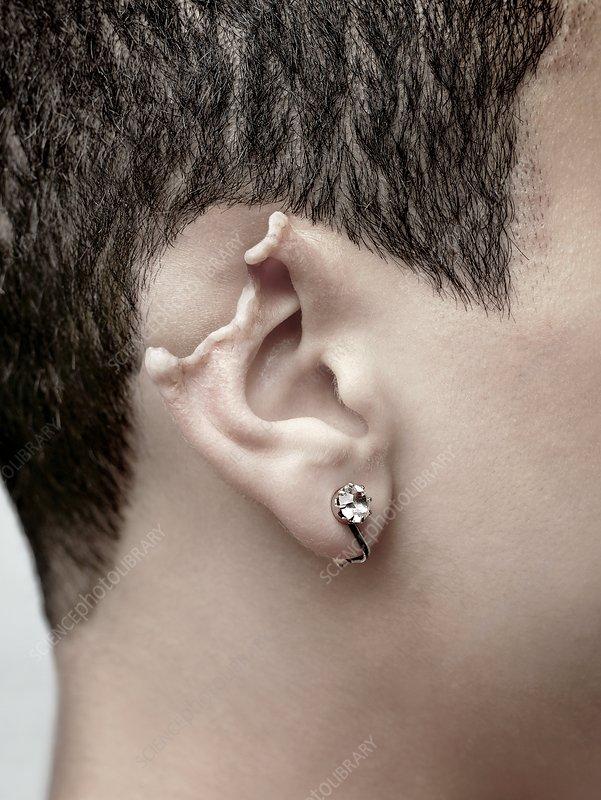 damaged ear