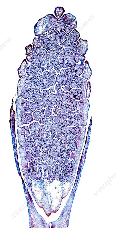 Horsetail cone, light micrograph