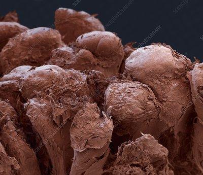 Human tongue surface, SEM