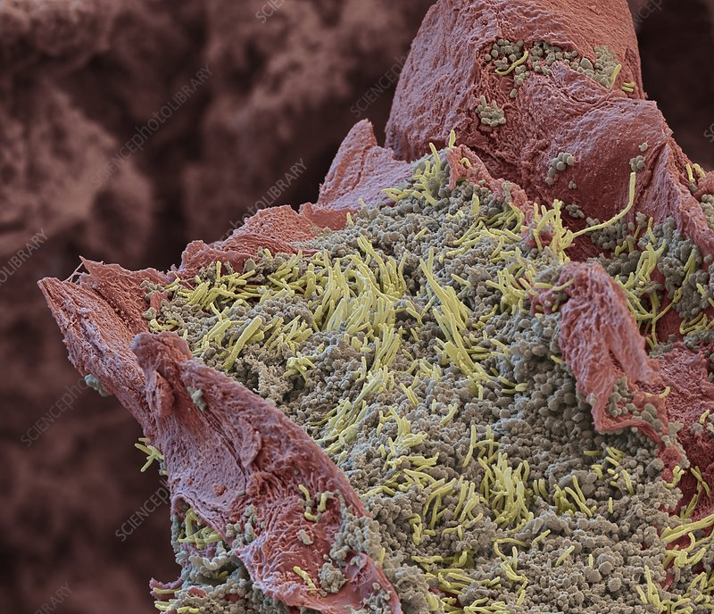 Human tongue surface with bacteria, SEM