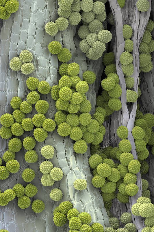 Ragweed pollen grains, SEM