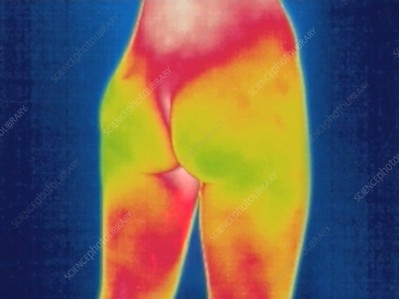 Human buttocks, thermogram