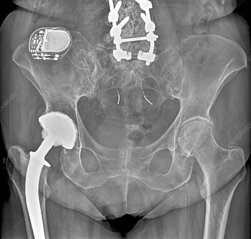 X-ray of implant for incontinence
