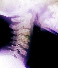 کجی گردن
