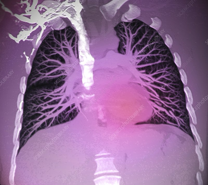 Blood vessels of healthy lungs