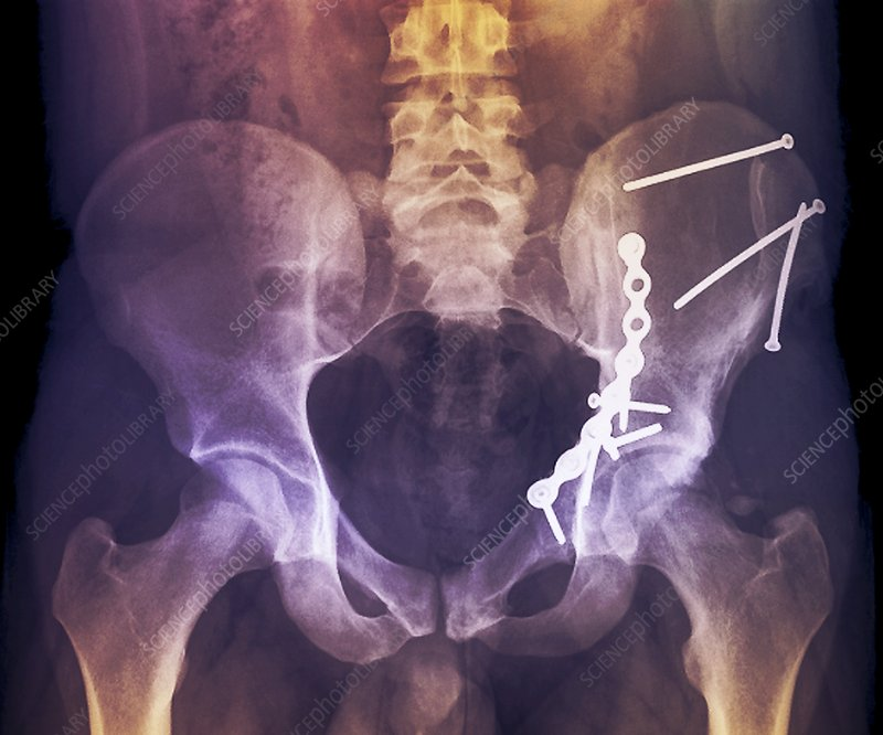 'Pinned hip fractures, X-ray'