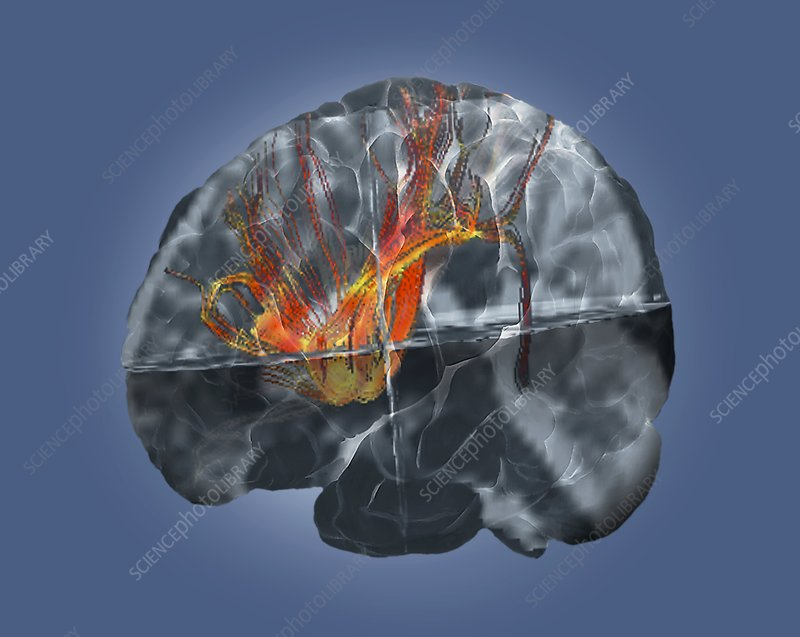 Brain cancer affecting nerve fibres