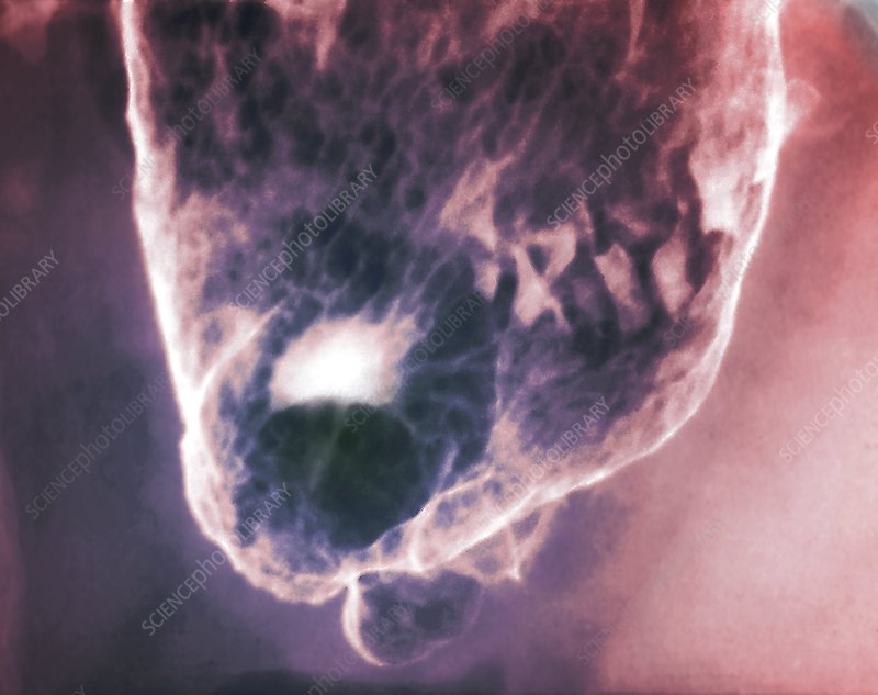 'Stomach (gastric) ulcer, X-ray'