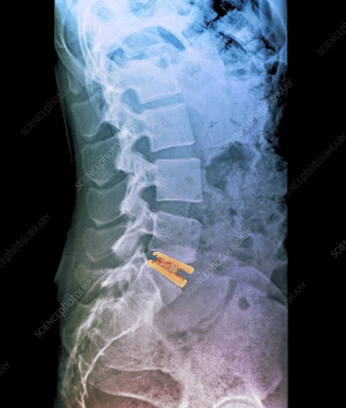 'Artificial spinal disc, X-ray'