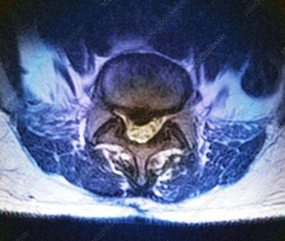 'Herniated spinal disc, MRI scan'