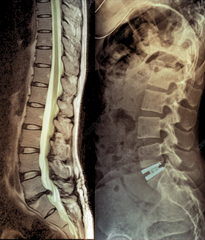 Spinal disc hernia and prosthesis