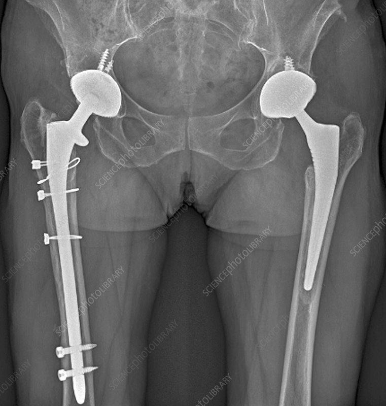 'Double hip replacement, X-ray'