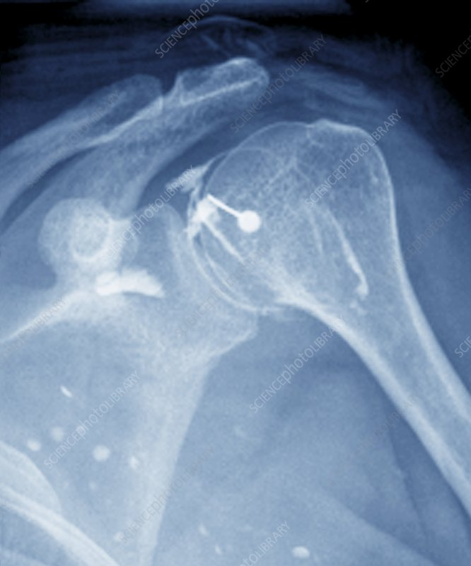 Steroid treatment of shoulder joint