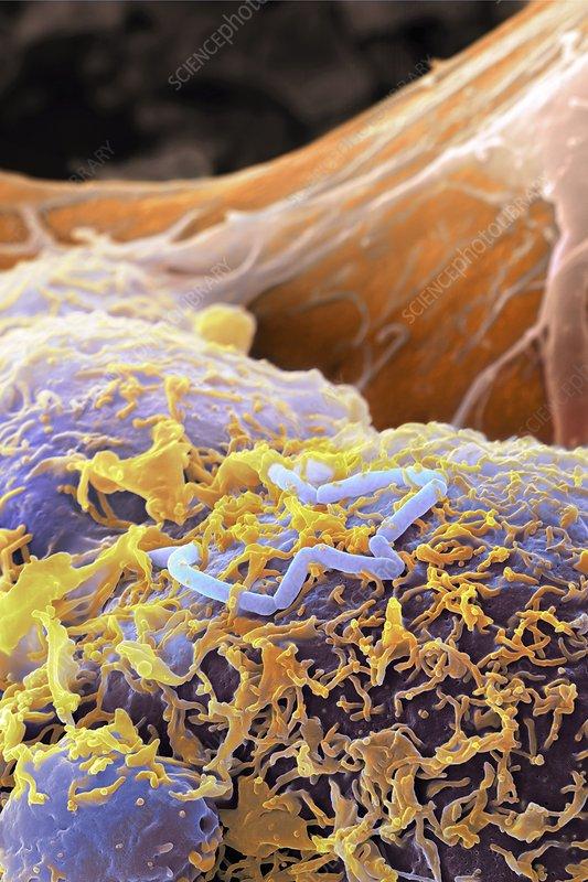 Listeria bacteria, SEM