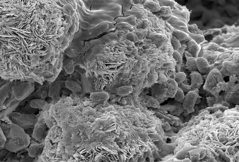 Biomineralisation bacteria, SEM