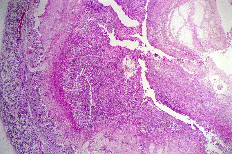 Throat cancer, light micrograph