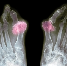X-ray of bunions on the toes