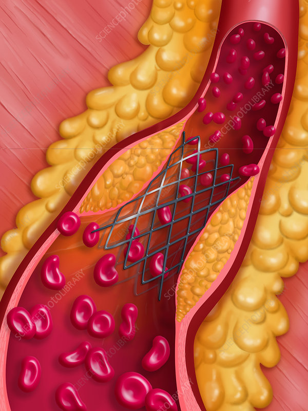 'arterial angioplasty, illustration'