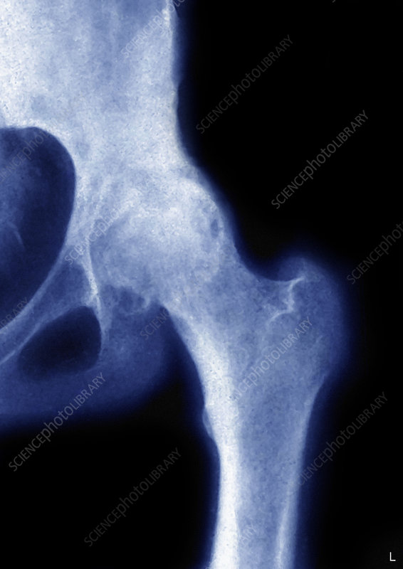 'arthrosis of the hip, x-ray'