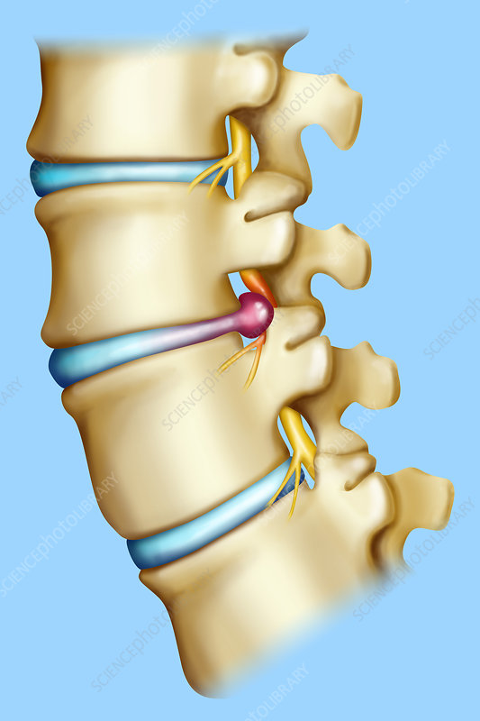 'herniated disk, illustration'