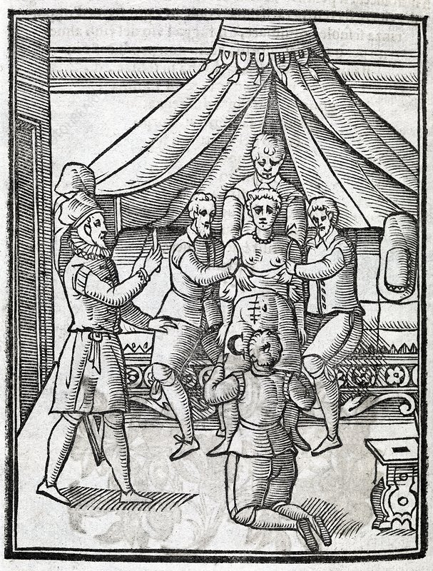 Caesarian section, 17th century artwork