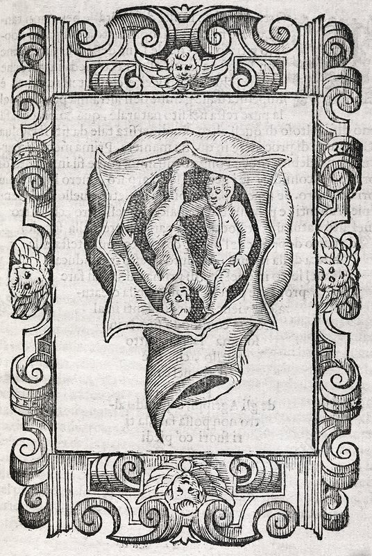 Twin foetuses, 17th century artwork