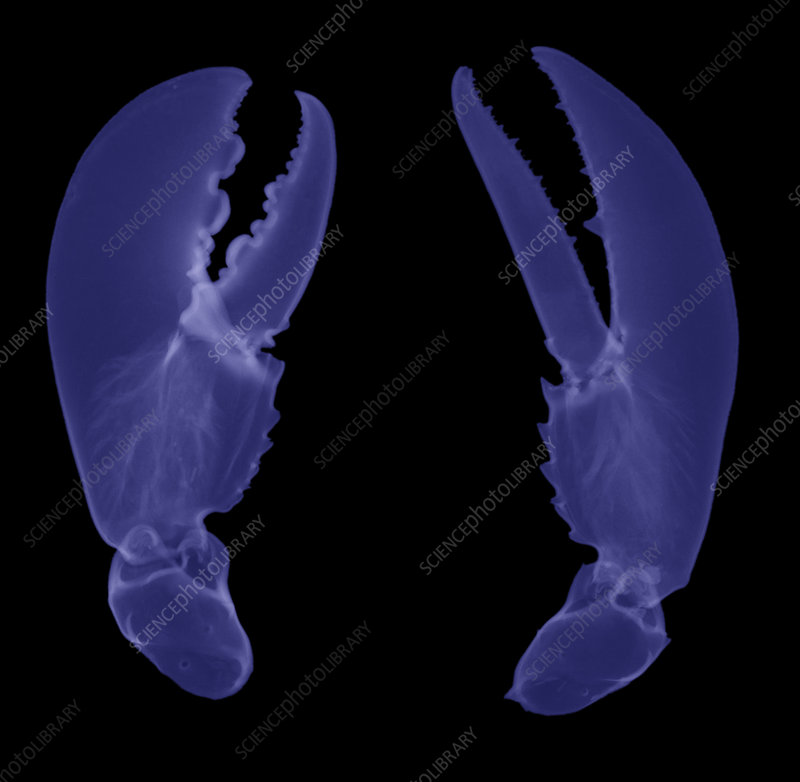 'Lobster Claws, X-Ray'