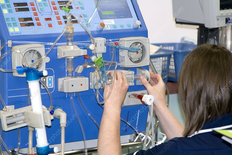 Adjusting a dialysis machine