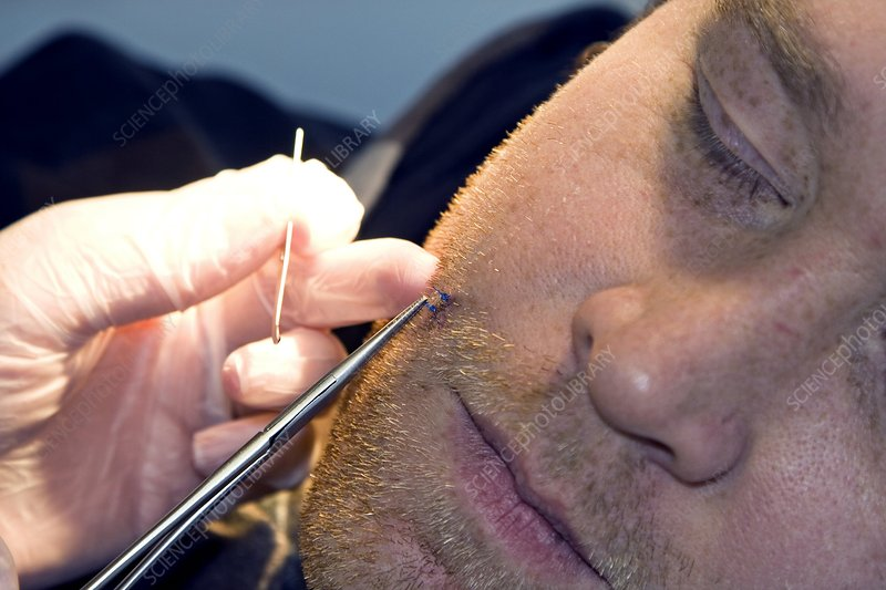 Removing stitches from the face