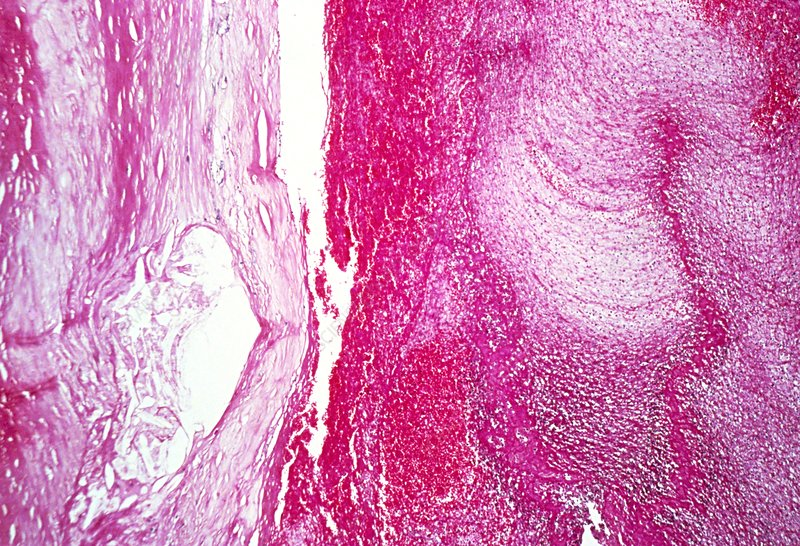 Complicated atheroma, light micrograph