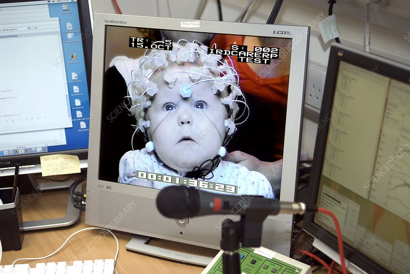 Baby electroencephalography