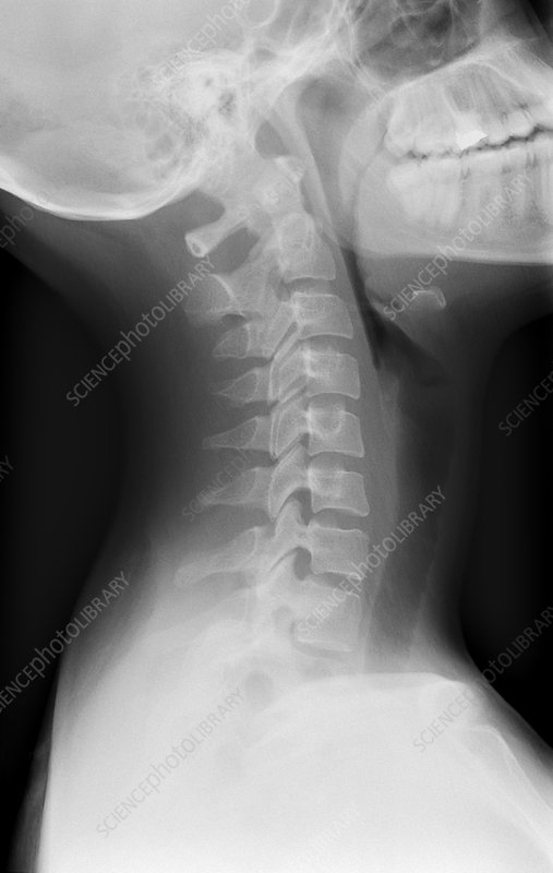 'Healthy spine of the neck, X-ray'
