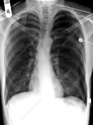 'Pneumothorax, X-ray'