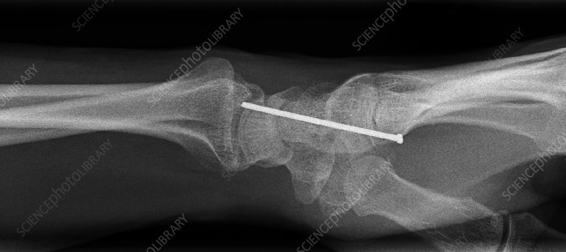 'Nail penetrating the wrist, X-ray'
