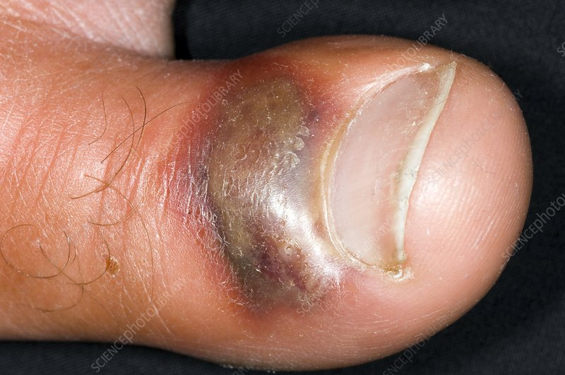 Infected bruise on big toe