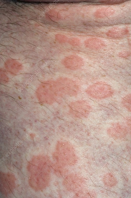 Urticaria rash on the skin