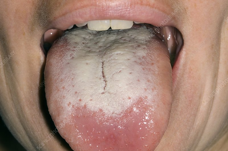 Candida infection of the tongue