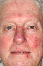 Acne rosacea on the face