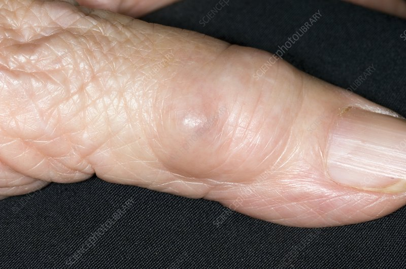 Synovial cyst on the finger