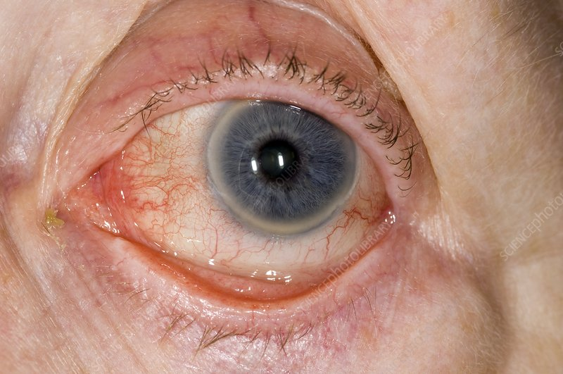 Chronic blepharitis of the eye