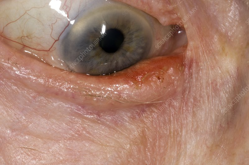 Ectropion (drooping) of the eyelid