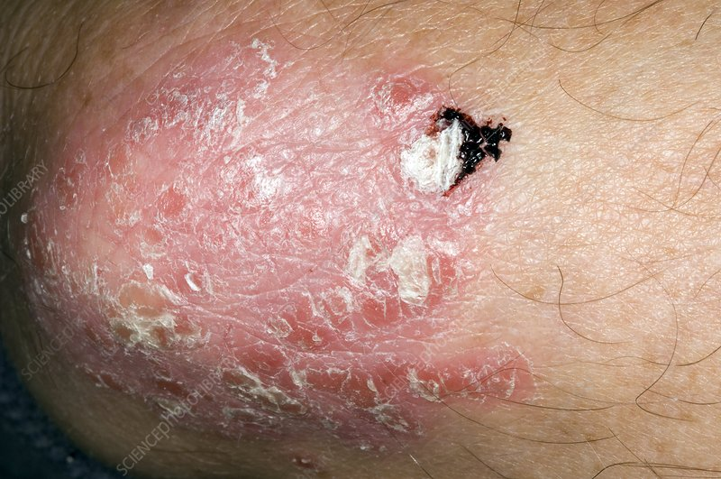 Plaque psoriasis of the elbow