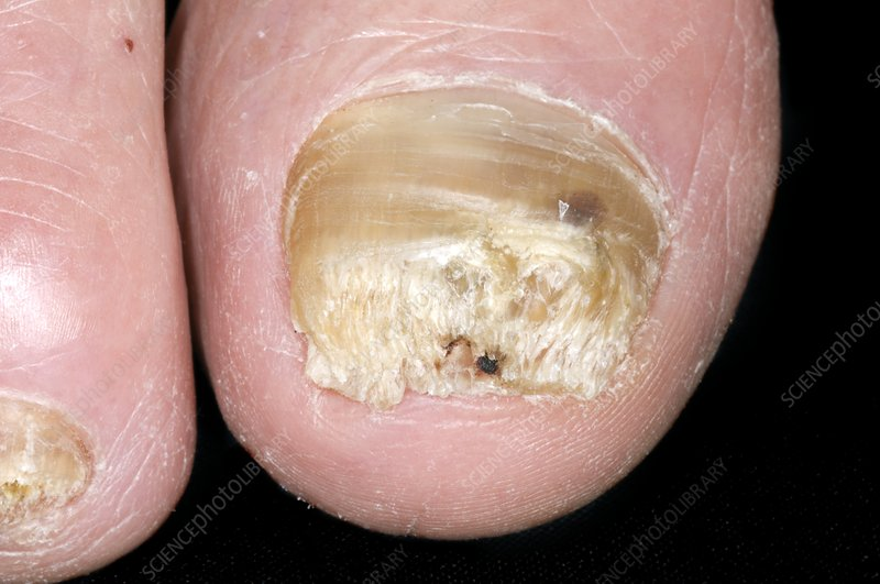 Psoriasis of the toe nails