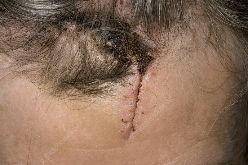 Laceration of the forehead