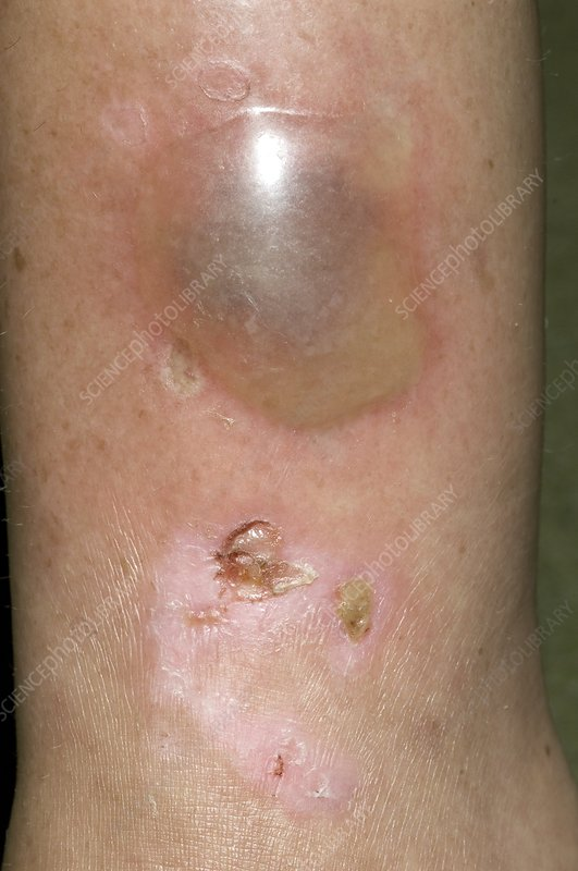 Blister on the leg