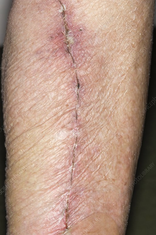 Leg vein scar for heart surgery