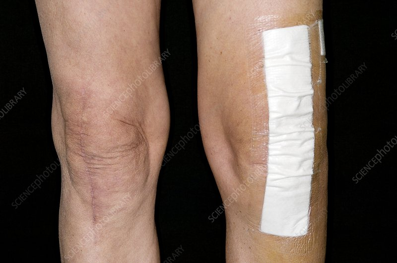 Knee scars after joint replacement