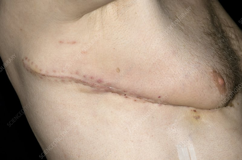 Chest scar for lung cancer