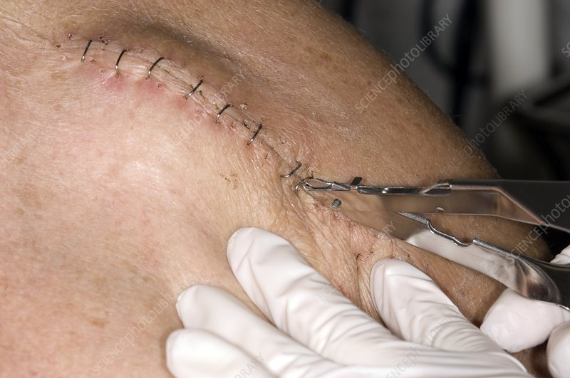 Unstapling wound on arm (image 7 of 7)